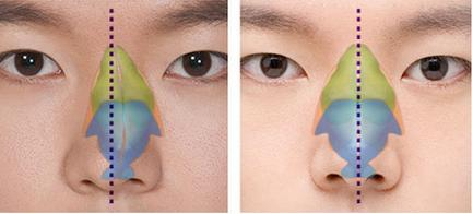 Những điều ít biết về mũi vẹo dưới đây sẽ khiến bạn giật mình - Ảnh 6