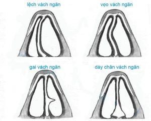 Mũi vẹo vách ngăn - Chẩn đoán dấu hiệu, nguyên nhân và cách chữa trị - Ảnh 3