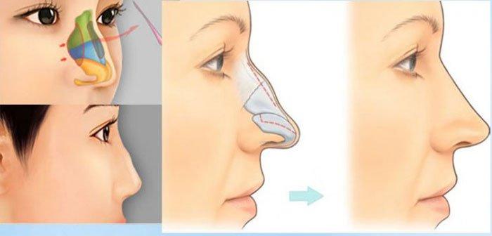Nên thay cải thiện dáng mũi càng sớm càng tốt