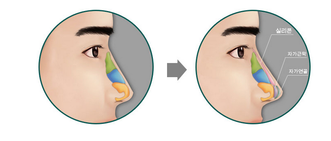 Nâng mũi Model 2D bọc sụn, dáng mũi khẳng định đẳng cấp 1
