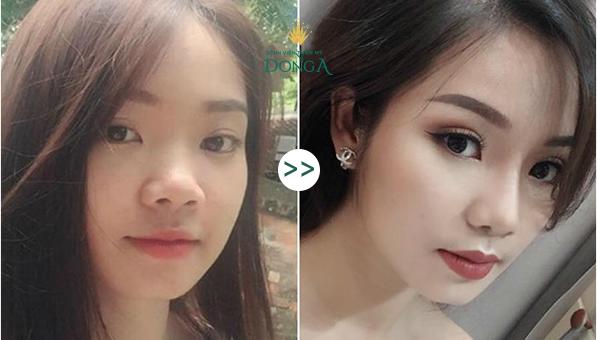 Cánh mũi to dày - Cách khắc phục một lần cho hiệu quả vĩnh viễn - Ảnh 6