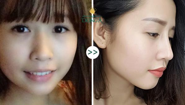 Nâng mũi Model 2D Hàn Quốc - Xu hướng làm đẹp không thể bỏ lỡ