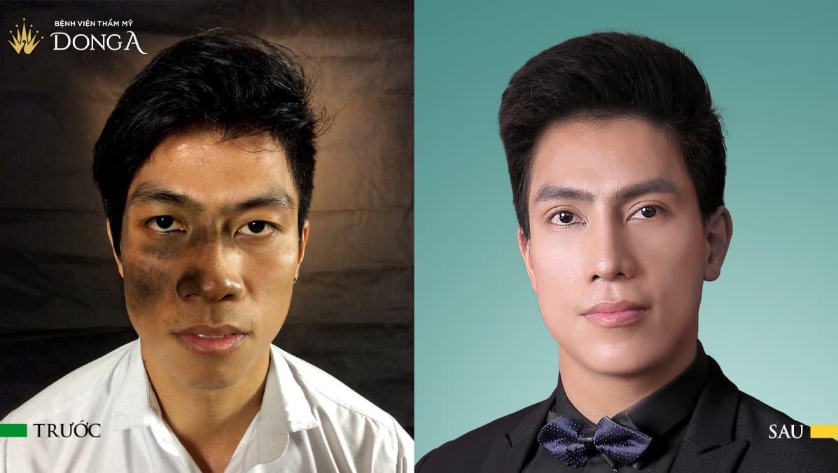 """Thay đổi dáng mũi, """"Hai Lúa"""" Đào Văn Tuấn trở thành Hotboy The Face - Ảnh 1"""