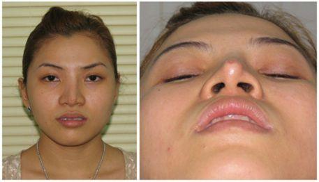 Nâng mũi sửa lại - Giải pháp hàng đầu cho mọi trường hợp mũi hỏng - Ảnh 2