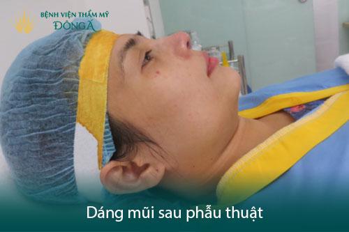 7 Hướng dẫn chăm sóc sau nâng mũi đúng cách để mũi mau lành, đẹp - Hình 8
