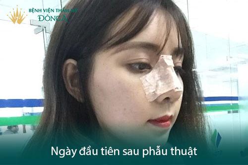7 Hướng dẫn chăm sóc sau nâng mũi đúng cách để mũi mau lành, đẹp - Hình 1