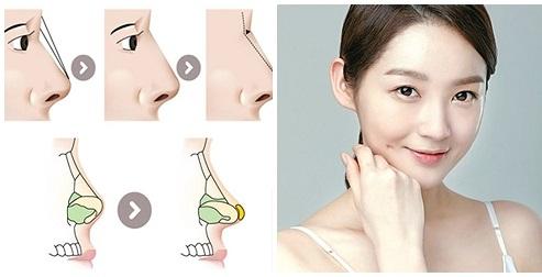 Chia sẻ kinh nghiệm nâng mũi - Bí kíp chọn dáng mũi Đẹp phù hợp - Hình 1