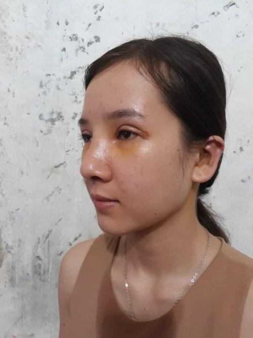 Chia sẻ kinh nghiệm nâng mũi - Bí kíp chọn dáng mũi Đẹp phù hợp - Hình 12
