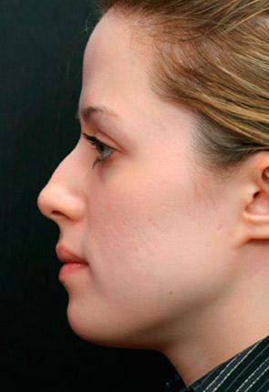 Giá sửa mũi gồ bao nhiêu tiền? Bảng giá chi tiết dịch vụ sửa mũi - Hình 1