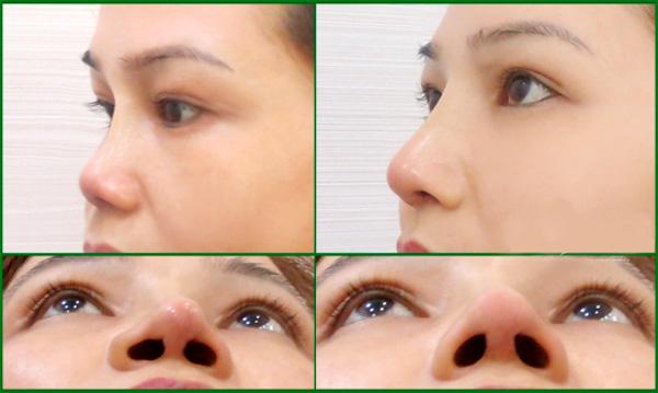 Chỉnh hình lỗ mũi - Phương pháp tạo lỗ mũi hạt chanh đẹp hoàn hảo 3