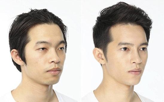 Nam giới có nên nâng mũi? Lựa chọn phương pháp nào