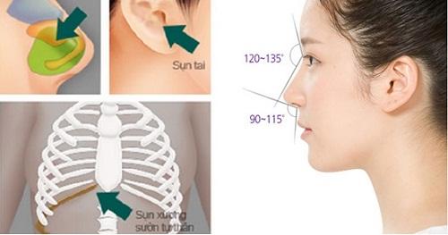 Nâng mũi bằng chỉ - Những biến chứng nguy hiểm bạn cần biết - Ảnh 12