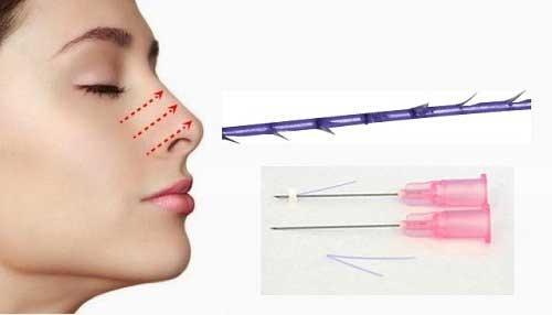 Nâng mũi bằng chỉ - Những biến chứng nguy hiểm bạn cần biết - Ảnh 1