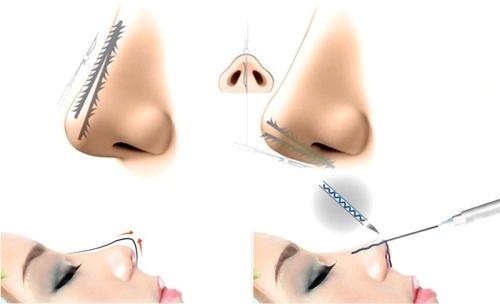 Nâng mũi bằng chỉ - Những biến chứng nguy hiểm bạn cần biết - Ảnh 3