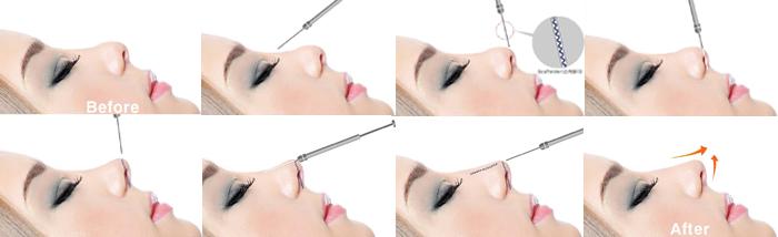 Nâng mũi chỉ tự tiêu là gì? Giữ Dáng mũi Đẹp trong bao lâu? Hình 5