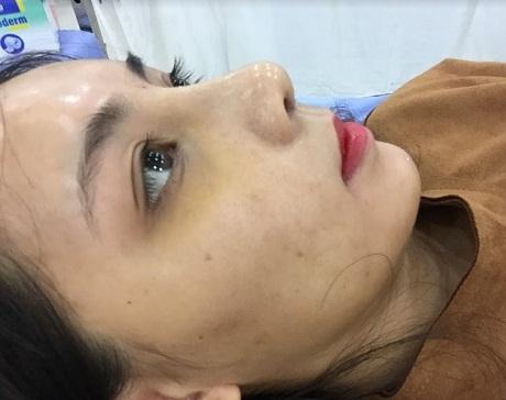Nâng mũi bị sưng bao lâu? Nguyên nhân và cách Giảm Sưng tốt nhất - Hình 2