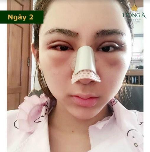 Nâng mũi bị sưng bao lâu? Nguyên nhân và cách Giảm Sưng tốt nhất - Hình 3