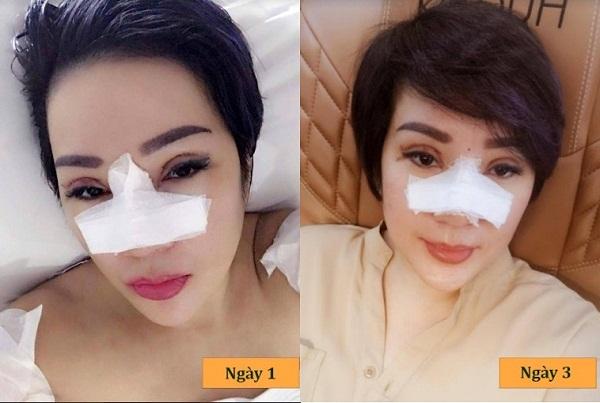 Nâng mũi bị sưng bao lâu? Nguyên nhân và cách Giảm Sưng tốt nhất - Hình 4