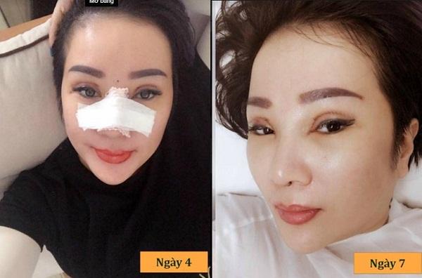Nâng mũi bị sưng bao lâu? Nguyên nhân và cách Giảm Sưng tốt nhất - Hình 5