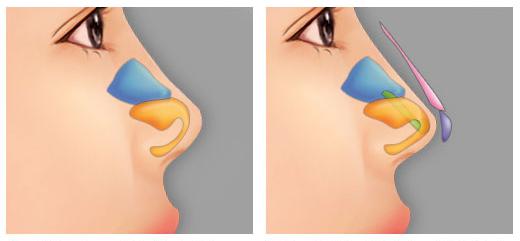 """Hỏi Đáp: """"Nâng mũi bọc sụn là gì? Chi phí bao nhiêu thì hợp lý?"""""""