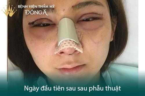 Nâng mũi có đau không? Có nguy hiểm, biến chứng không? Hình 1