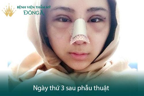 Nâng mũi có đau không? Có nguy hiểm, biến chứng không? Hình 2