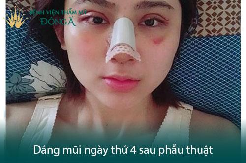Nâng mũi có đau không? Có nguy hiểm, biến chứng không? Hình 3