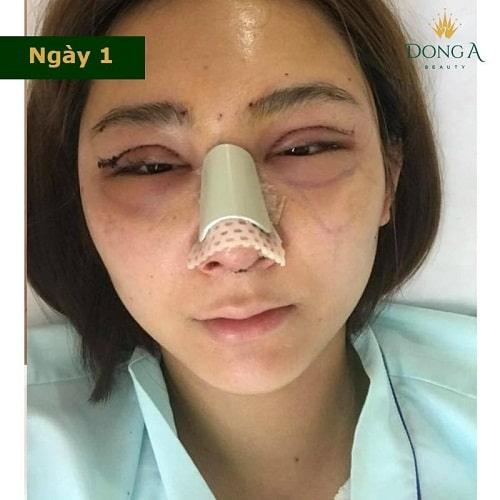 Nâng mũi có đau không? Chia sẻ thực tế từ cô gái trẻ nâng mũi S Line - Hình 1