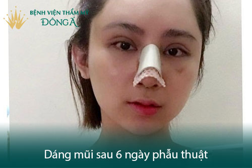 Nâng mũi có đau không? Có nguy hiểm, biến chứng không? Hình 4