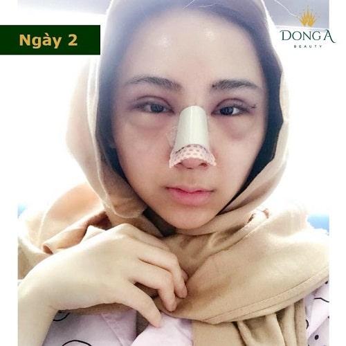 Nâng mũi có đau không? Chia sẻ thực tế từ cô gái trẻ nâng mũi S Line - Hình 2