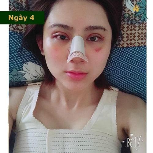 Nâng mũi có đau không? Chia sẻ thực tế từ cô gái trẻ nâng mũi S Line - Hình 3