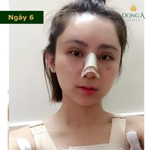 Nâng mũi có đau không? Chia sẻ thực tế từ cô gái trẻ nâng mũi S Line - Hình 4