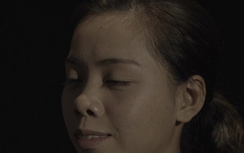Nâng mũi Đông Á có tốt như lời đồn? Lắng nghe từ câu chuyện thực tế 6