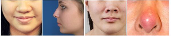 Nâng mũi được bao nhiêu năm ? Bật mí kỹ thuật Nâng mũi Vĩnh Viễn - Hình 6