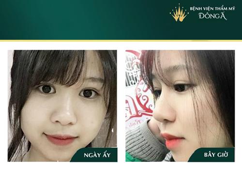 Nâng mũi khi về già có sao không? Cách hạn chế Biến Chứng về sau - Hình 11