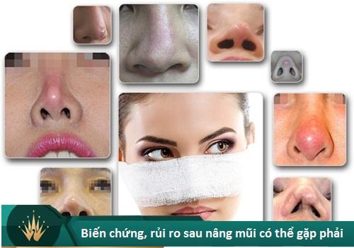 Nâng mũi khi về già có sao không? Cách hạn chế Biến Chứng về sau - Hình 7