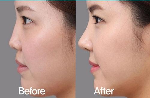 Lựa chọn nâng mũi không phẫu thuật, nên hay không? 3