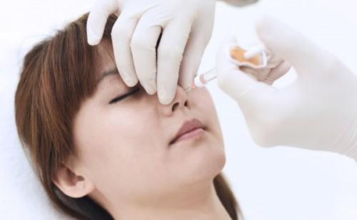 Lựa chọn nâng mũi không phẫu thuật, nên hay không? 1