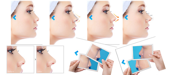 Lựa chọn nâng mũi không phẫu thuật, nên hay không?5