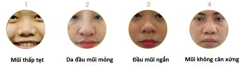 Nâng mũi Model 2D bọc sụn, dáng mũi khẳng định đẳng cấp 4
