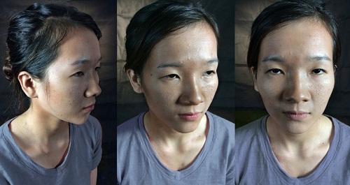 Nâng mũi Model 4D Nano Form - Mũi đẹp hoàn hảo, tương thích 100% 5