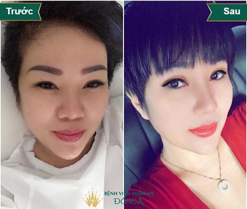 Nâng mũi ở đâu Đẹp tự nhiên, An toàn & Rẻ nhất Hà Nội + Sài Gòn - Hình 2