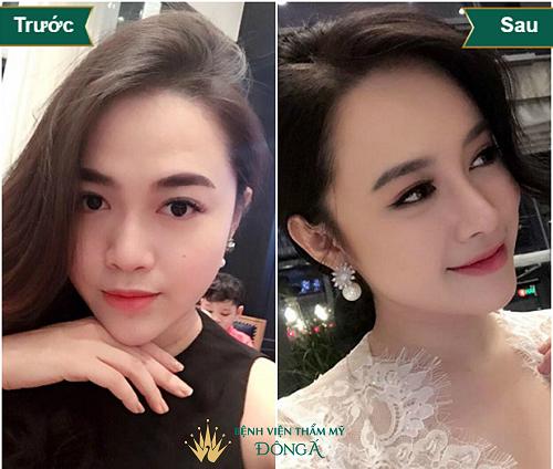 Nâng mũi ở đâu Đẹp tự nhiên, An toàn & Rẻ nhất Hà Nội + Sài Gòn - Hình 3