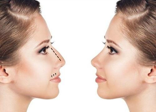 Sửa mũi có ảnh hưởng đến tướng số? Dư luận nói gì về điều này? - Ảnh 4