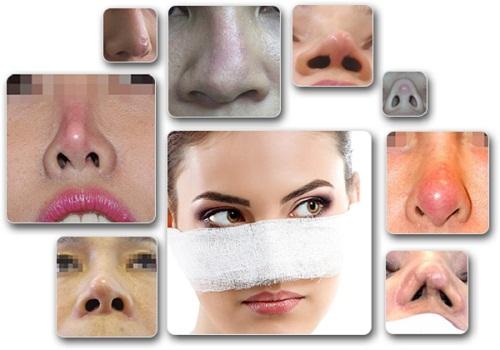 Nâng mũi sửa lại - Giải pháp hàng đầu cho mọi trường hợp mũi hỏng - Ảnh 1
