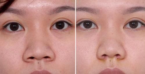Thu gọn cánh mũi có ảnh hưởng gì không? Tìm hiểu từ A-Z 3