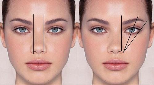 Thu gọn cánh mũi có ảnh hưởng gì không? Tìm hiểu từ A-Z 2