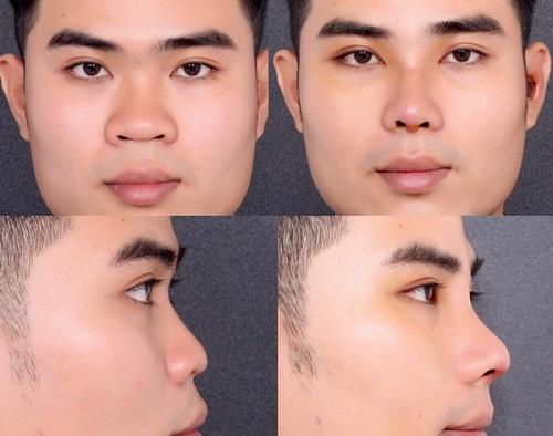 Thu gọn cánh mũi có ảnh hưởng gì không? Tìm hiểu từ A-Z 6