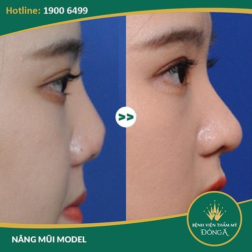 Chỉnh hình mũi hếch - Phương pháp an toàn, hiệu quả đẹp tự nhiên