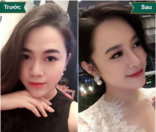 Nâng mũi bọc sụn ở đâu Đẹp - An Toàn và Uy Tín nhất Việt Nam - Hình 3